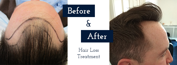 Ailesbury Hair Clinic | Hair Loss Clinic, Hair Transplant